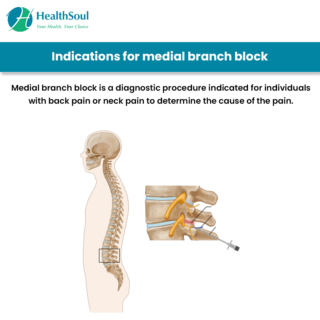 Indications for medical brach block
