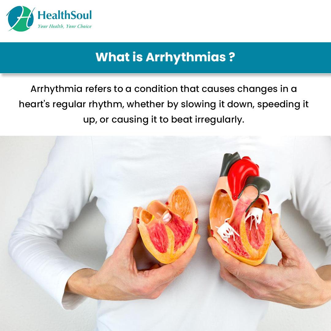 What is Arrhythmias?