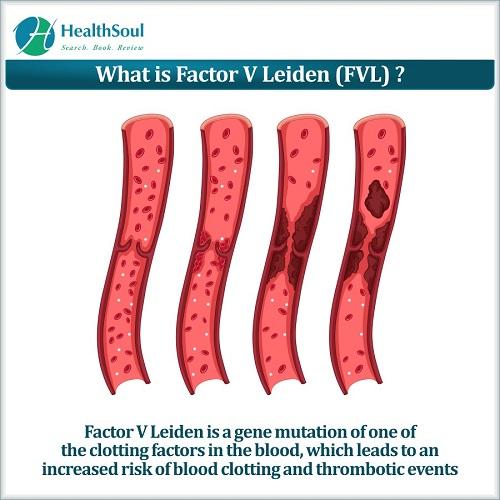 What is factor V Leiden? | HealthSoul