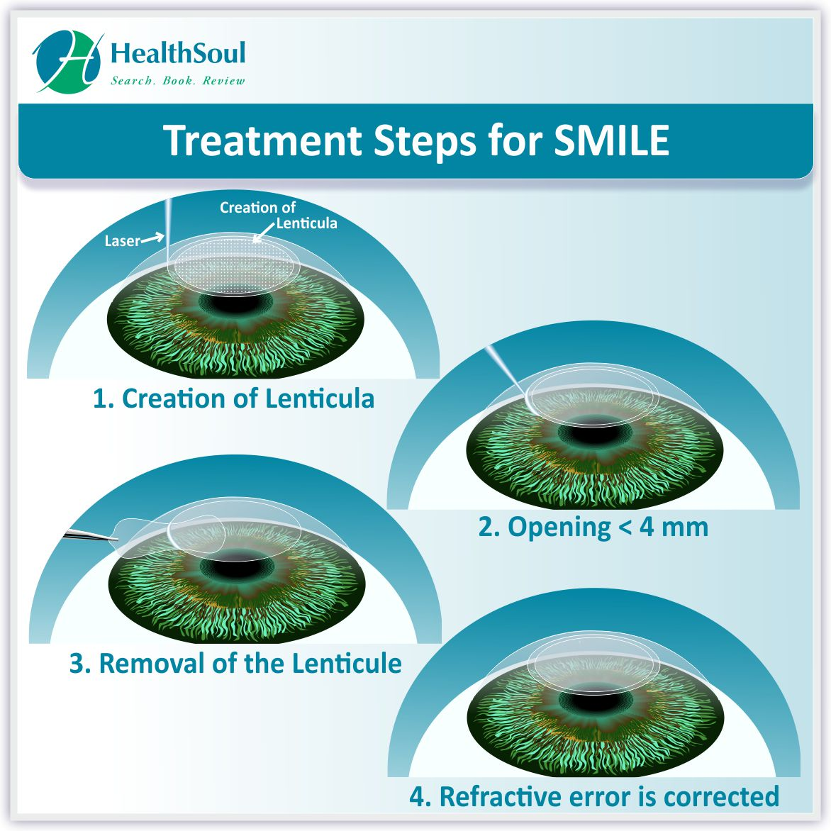 SMILE Teratment steps | HealthSoul