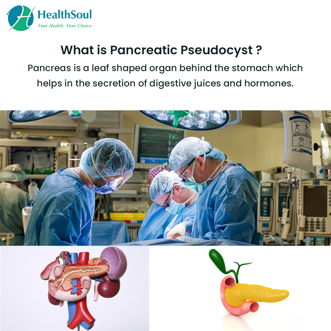 What is Pancreatic Pseudocyst?