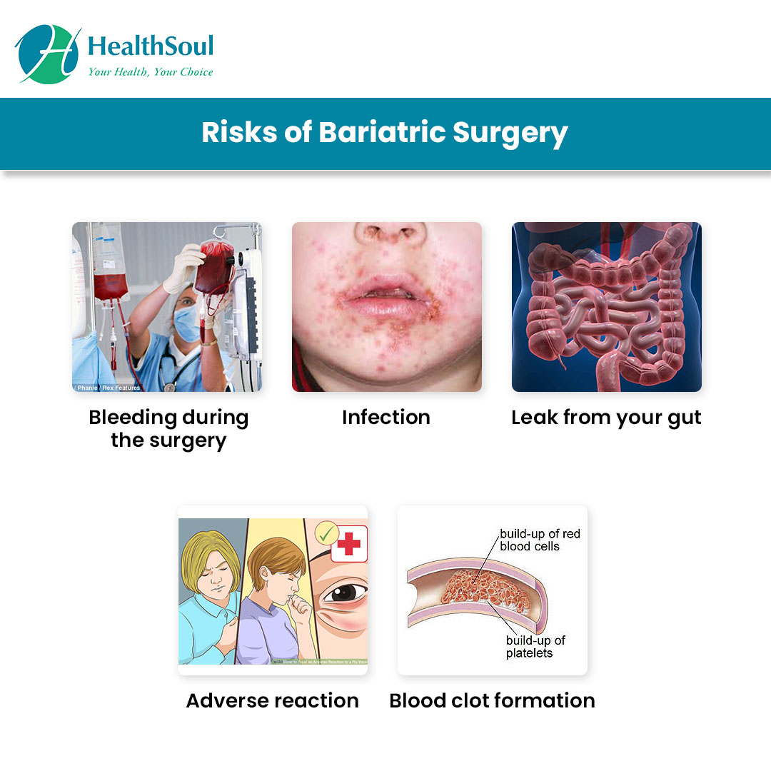 Risks of Bariatric surgery