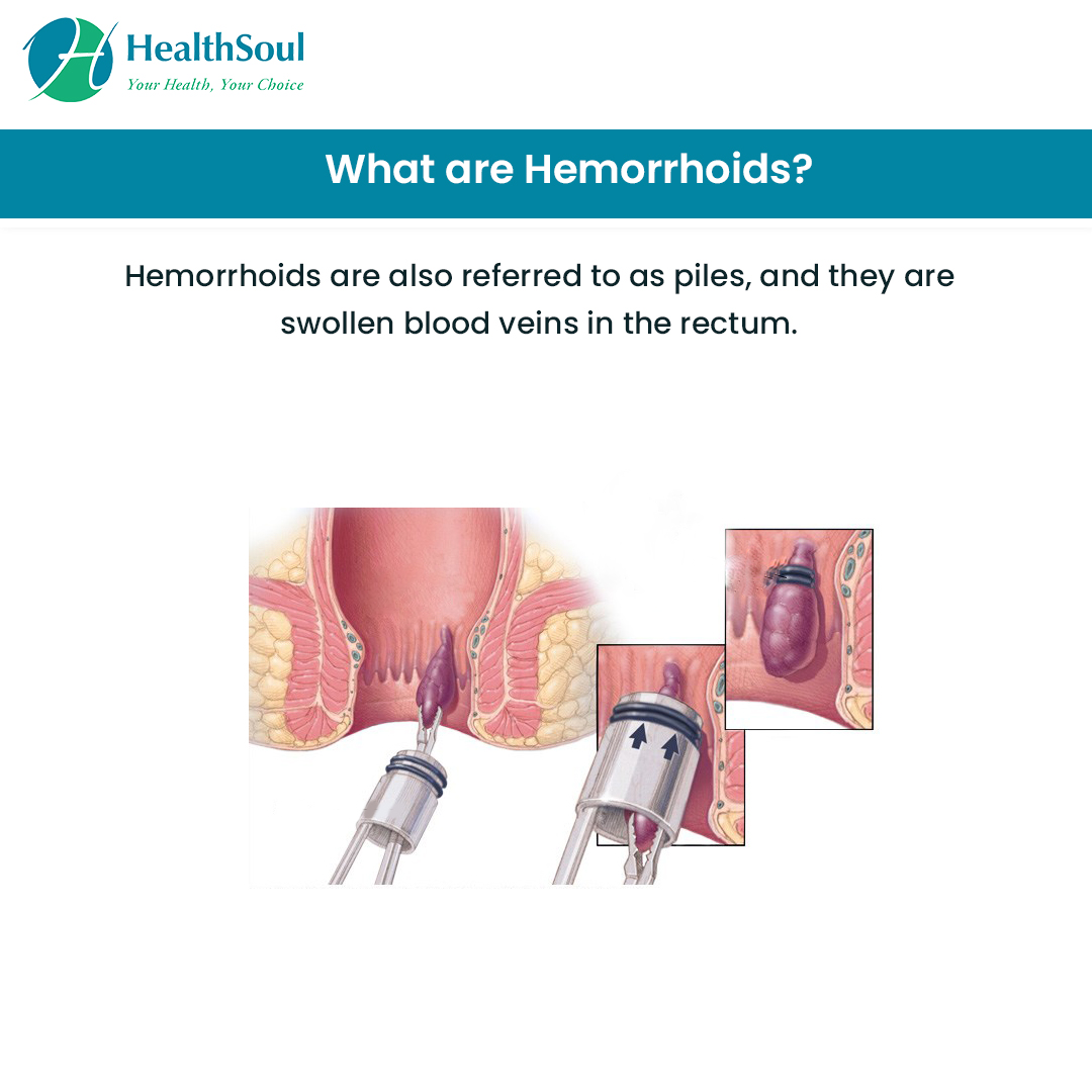 What is Hemorrhoids?