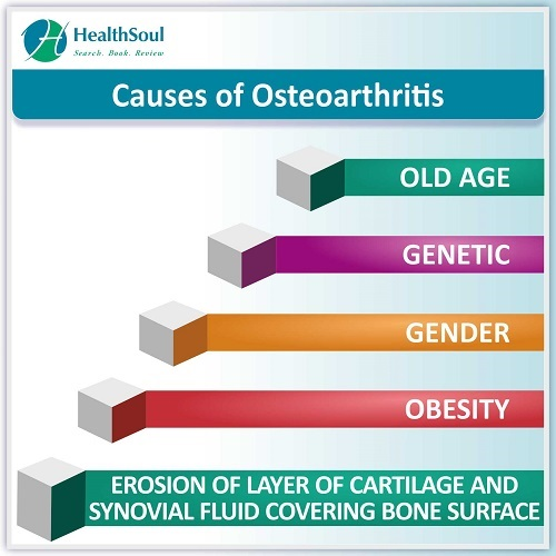 Causes of Osteoarthritis | HealthSoul