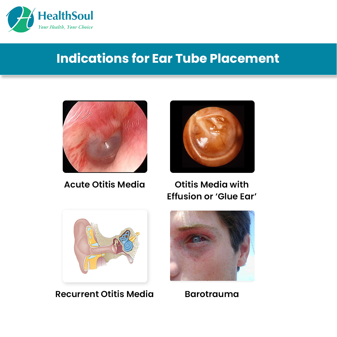 Indications for Ear Tube Placement
