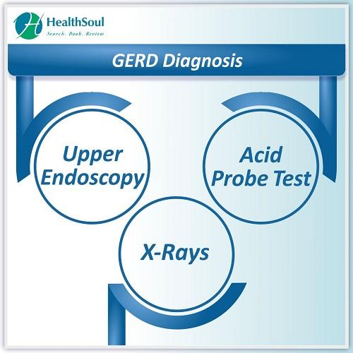 GERD Diagnosis