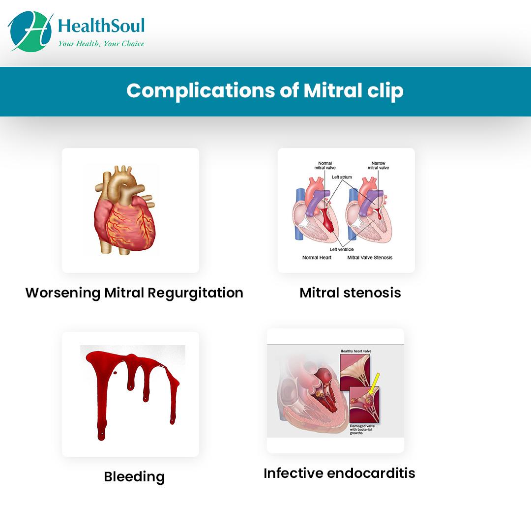 Complications of Mitral Clip