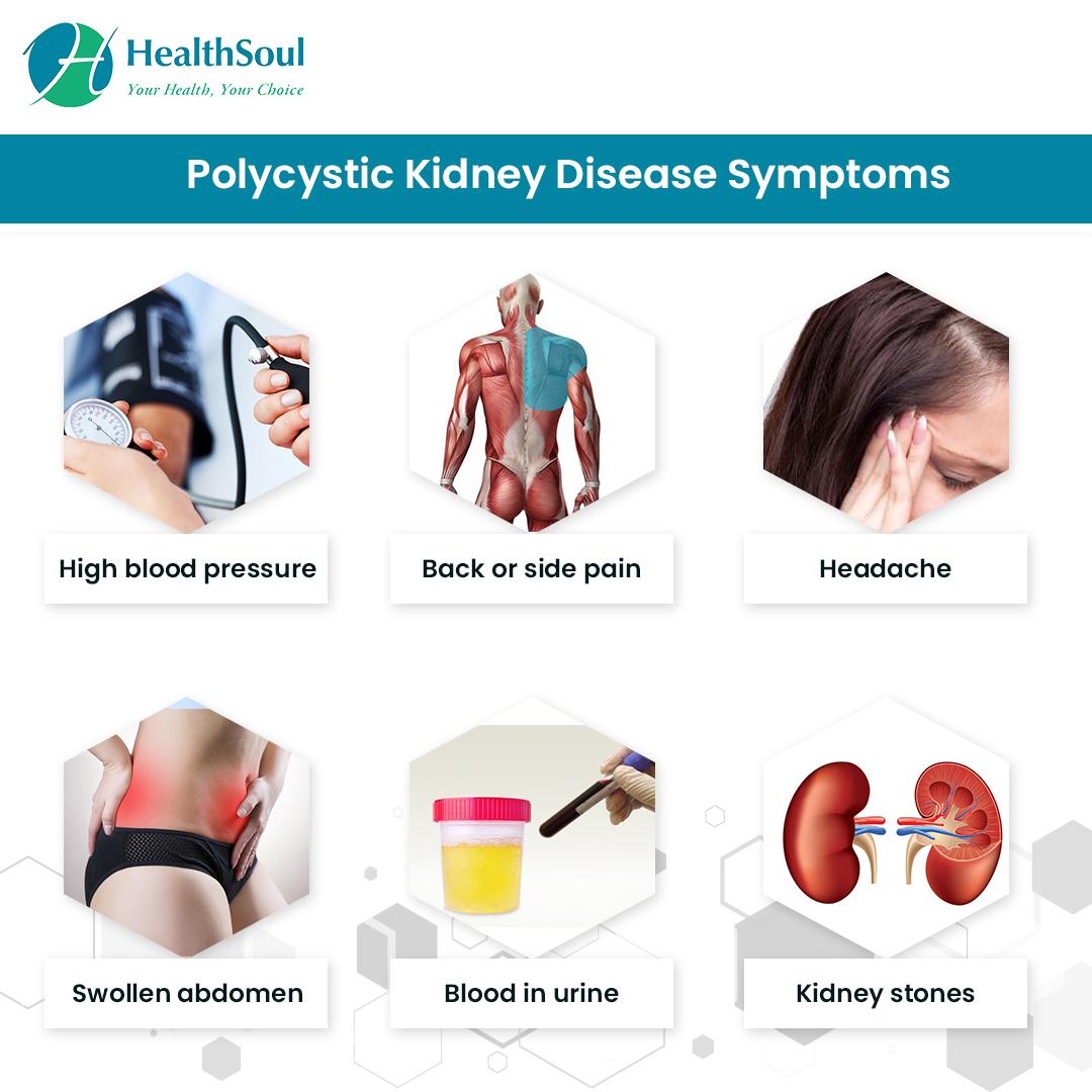 Polycystic Kidney Disease Symptoms