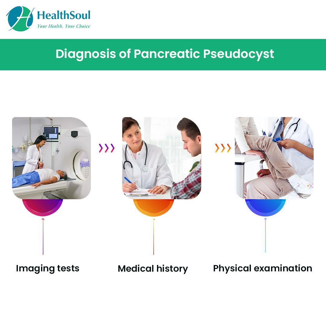 Diagnosis of Pancreatic Pseudocyst