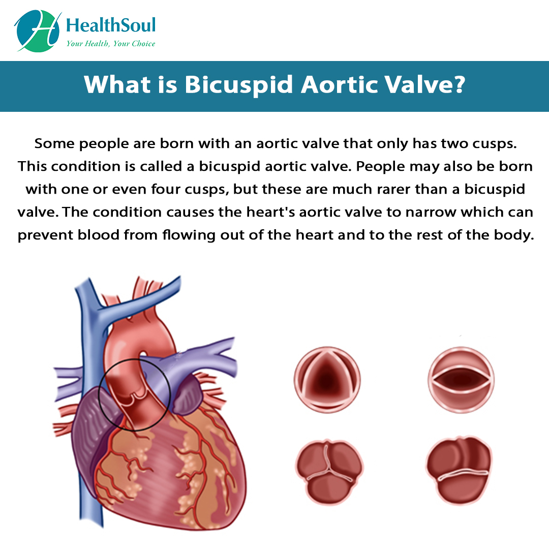 What is Bicuspid Aortic Valve?