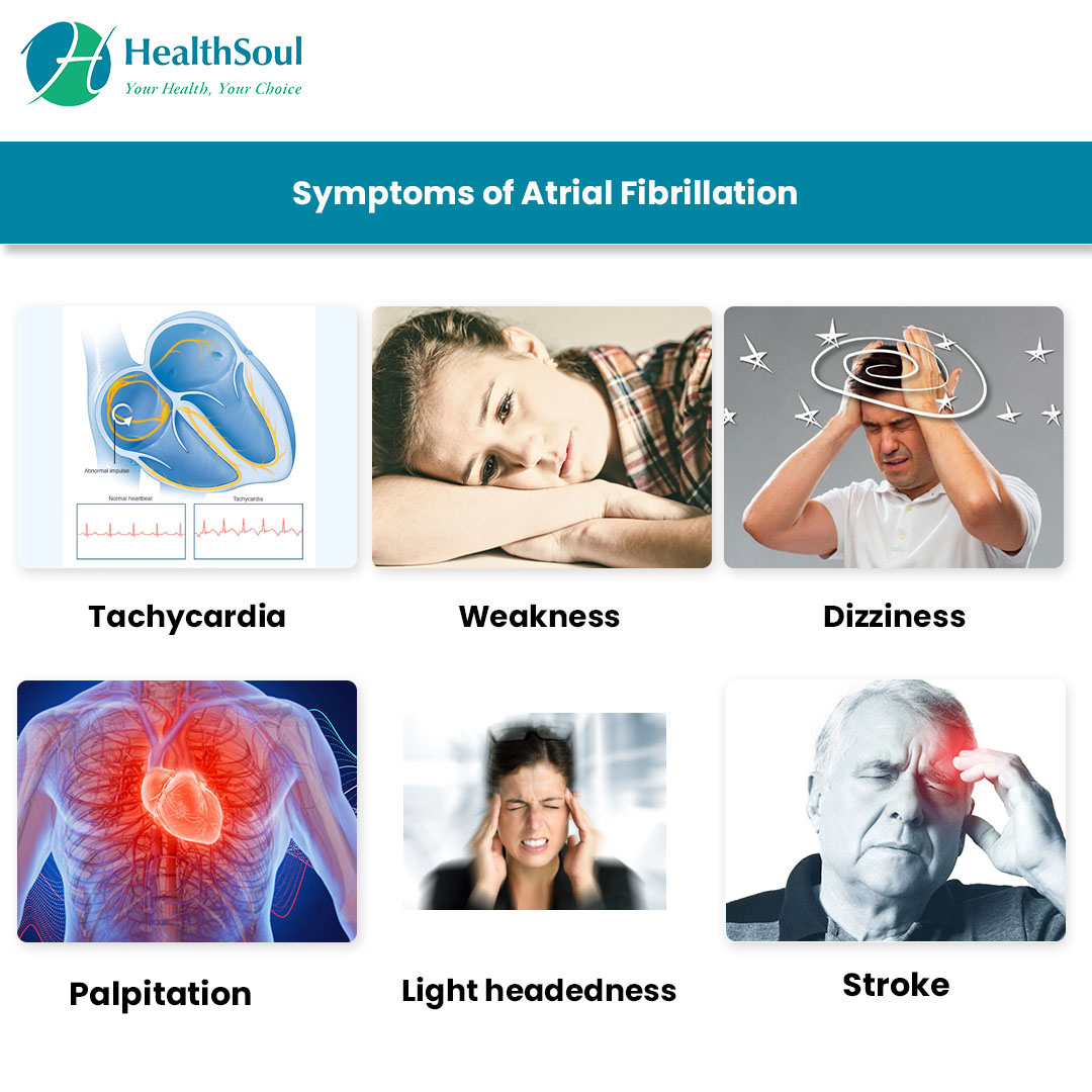 Symptoms of Atrial Fibrillation