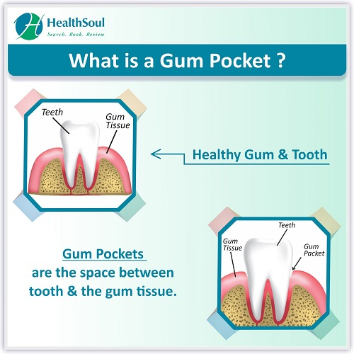What is a Gum Pocket?