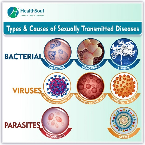 Types & Causes of Sexually Transmitted Diseases | HealthSoul