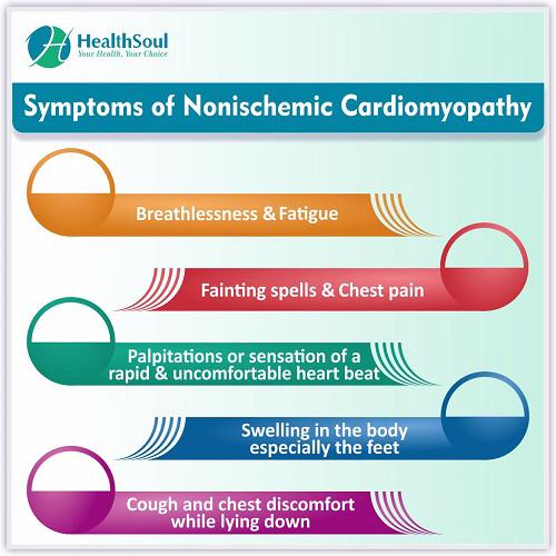 Symptoms of Nonischemic Cardiomyopathy | Healthsoul