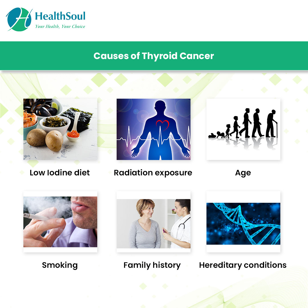 causes of Thyroid Cancer