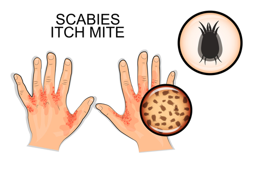 DIAGNOSIS OF SCABIES