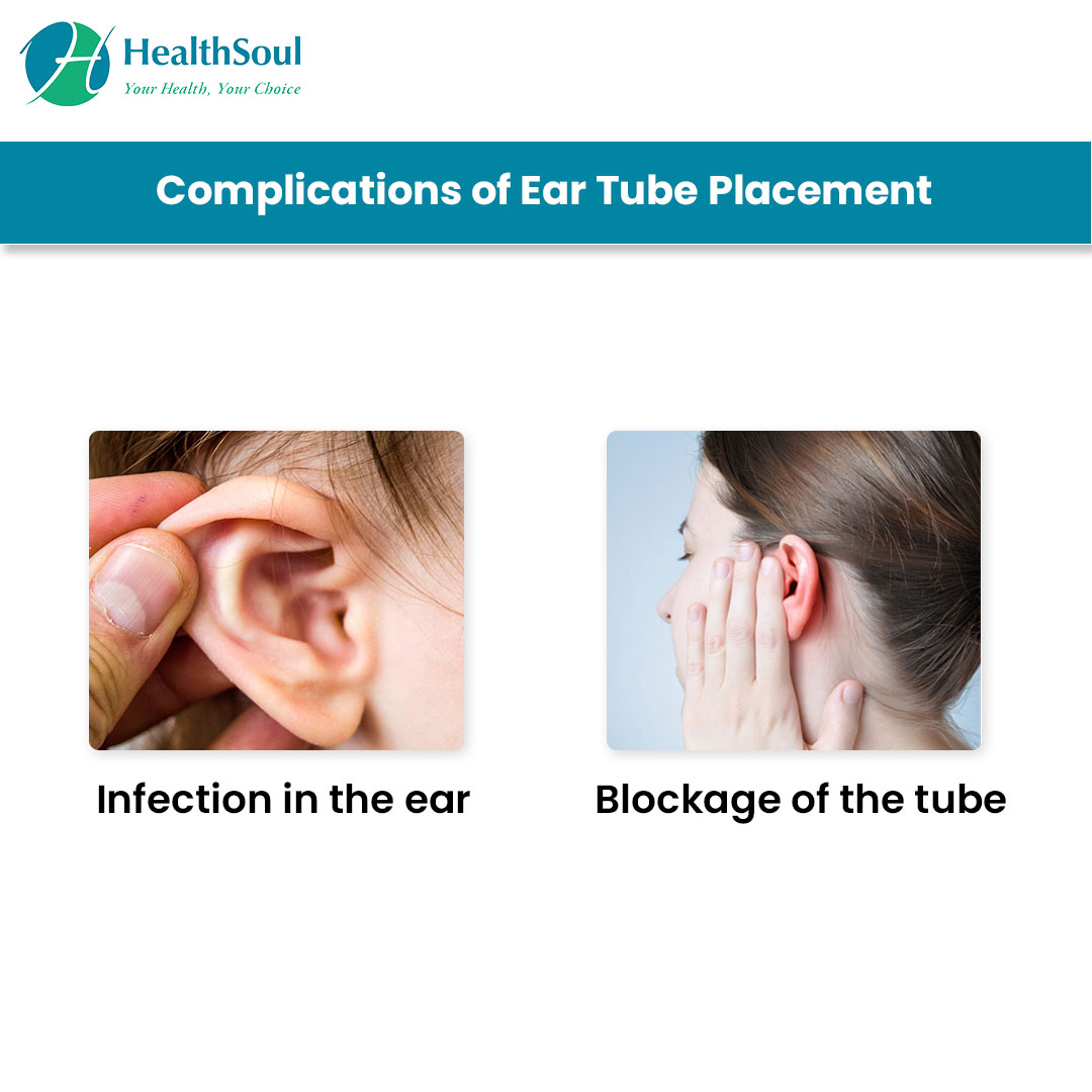 Complications of Ear Tube Placement