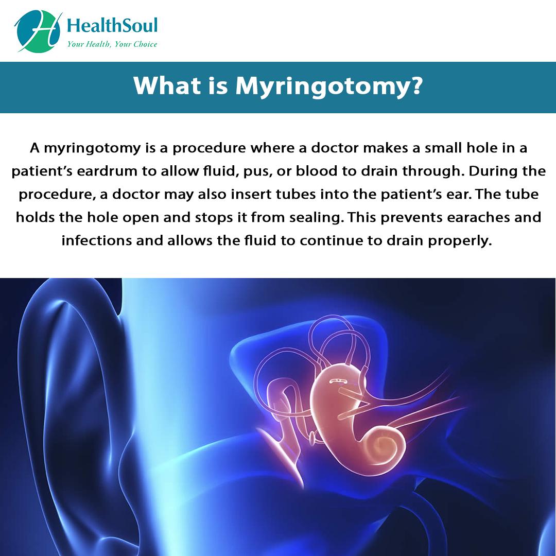 What is Myringotomy?