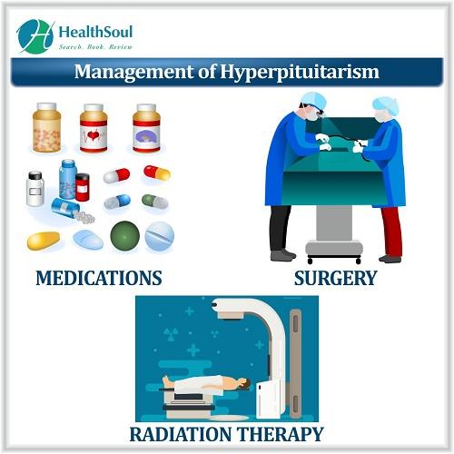 Management of Hyperpituitarism | HealthSoul