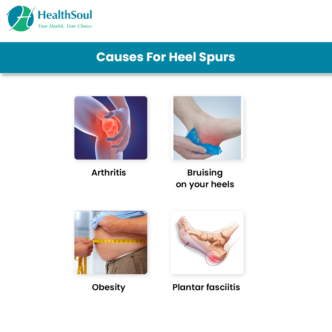 Causes for Heel Spurs