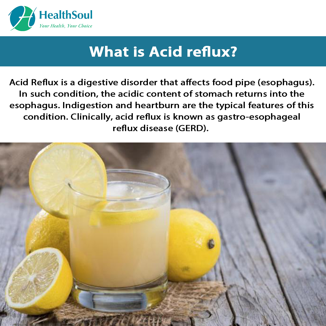 What is acid reflux | HealthSoul