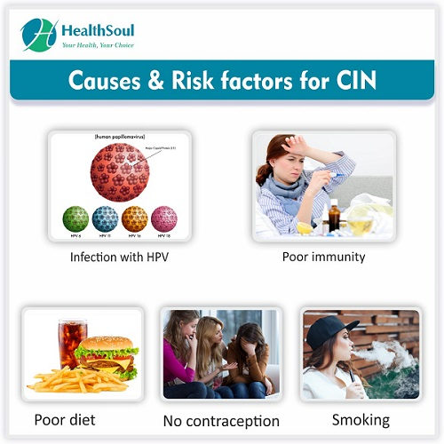 Causes & Risk factors for CIN | HealthSoul