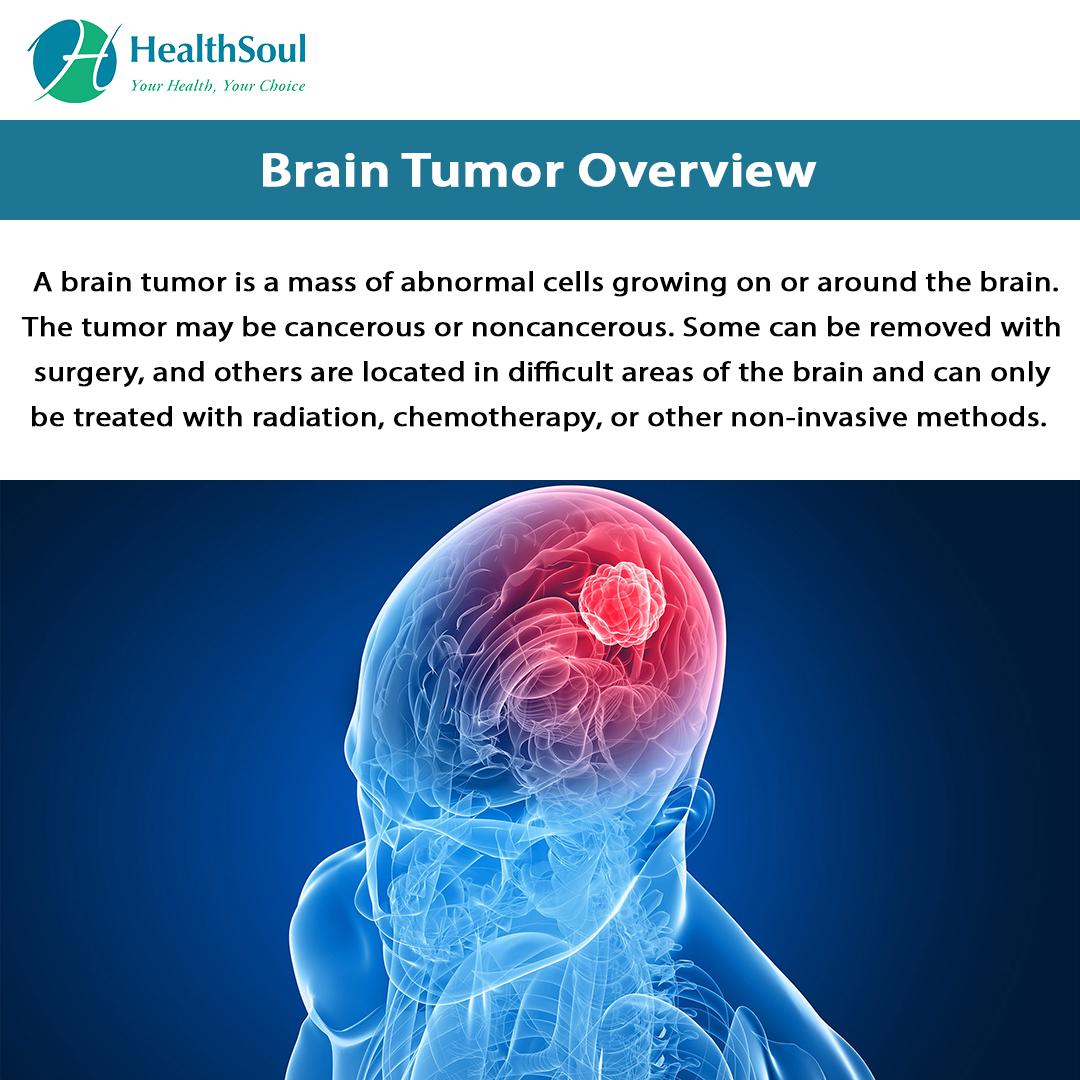 Brain Tumor Overview