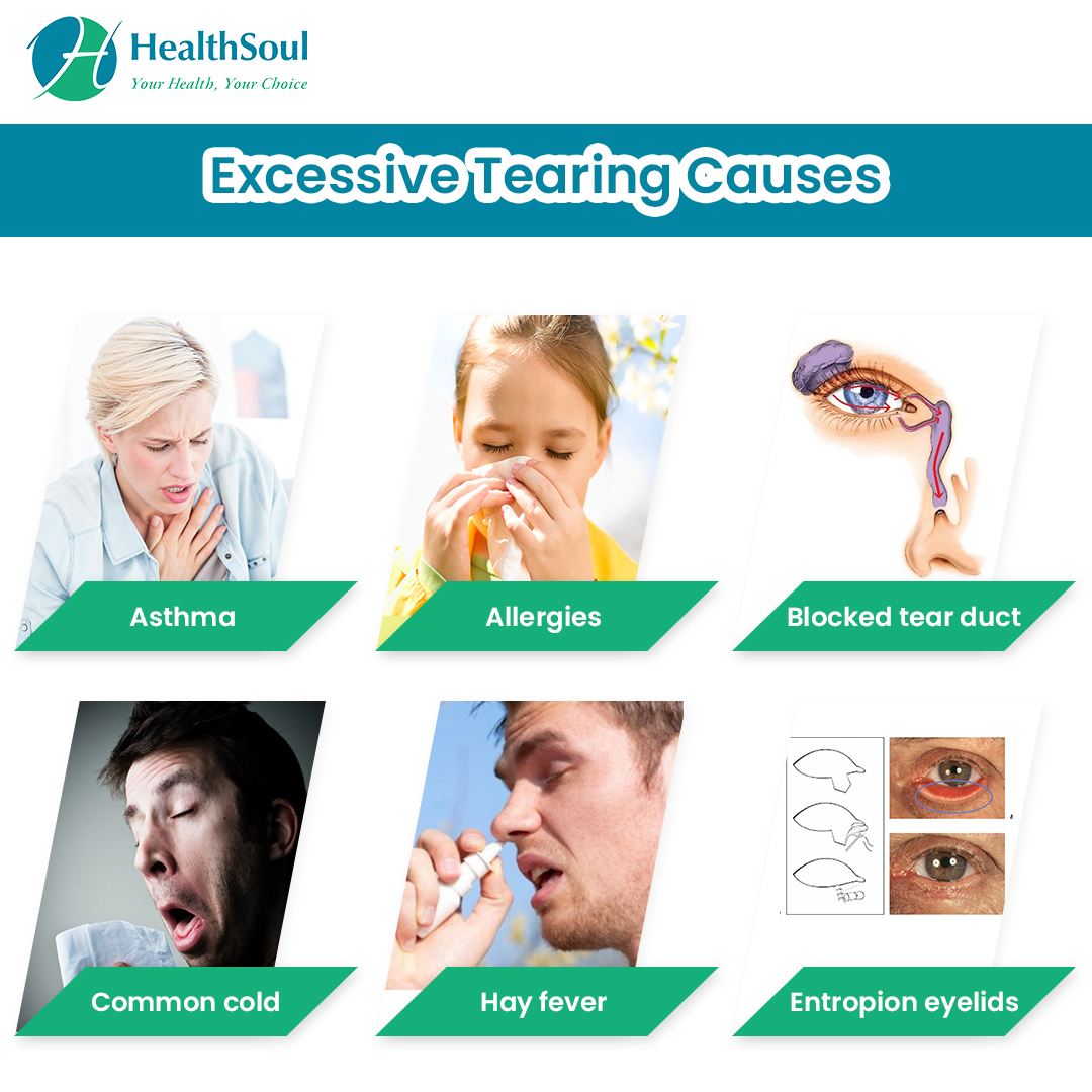 Excessive Tearing Causes