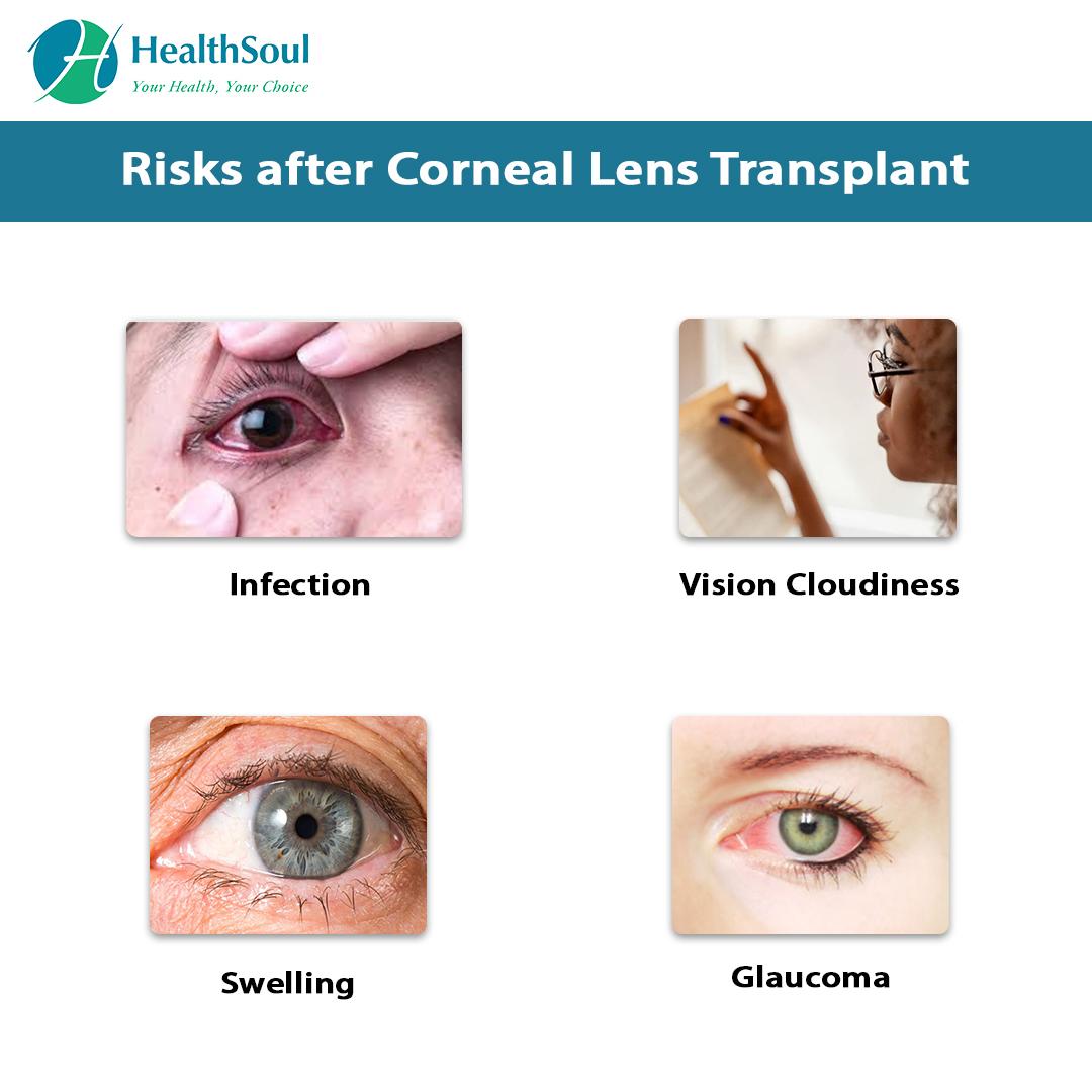 Risks after Corneal Lens Transplant