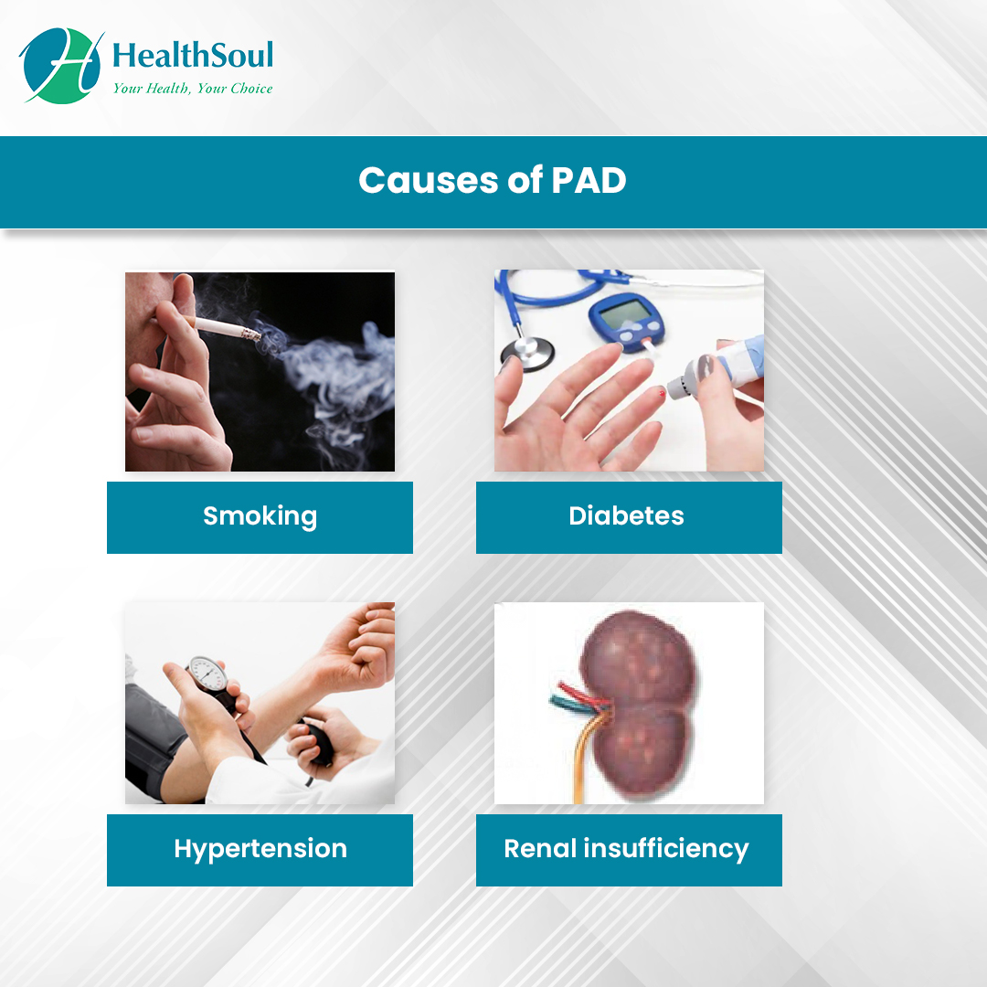 Causes of PAD