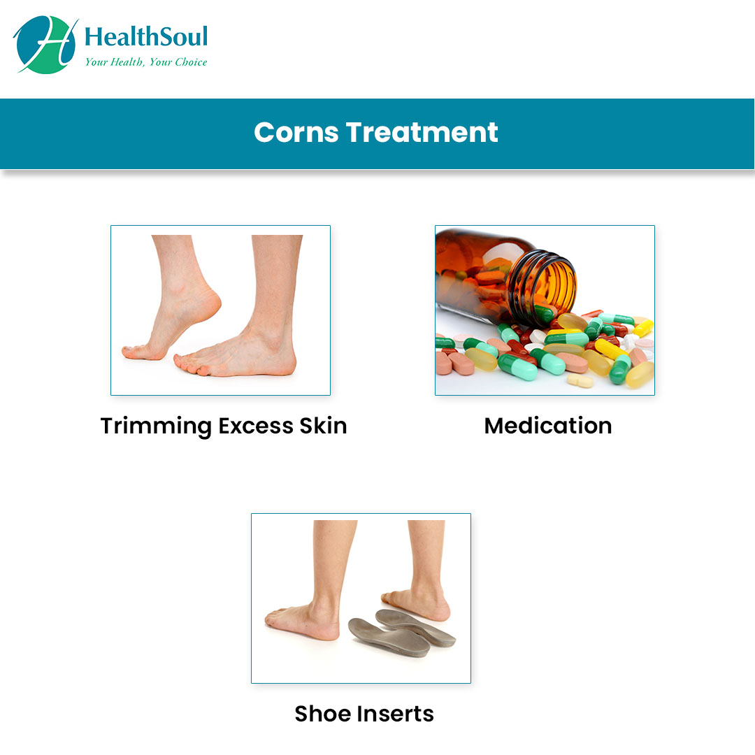 Corns Treatment
