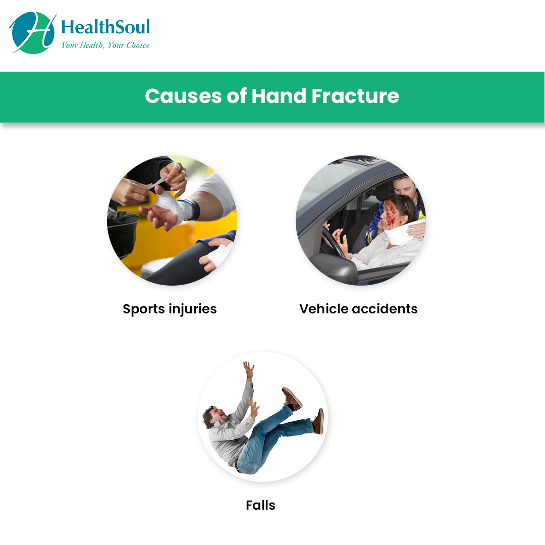 Causes of Hand Fracture