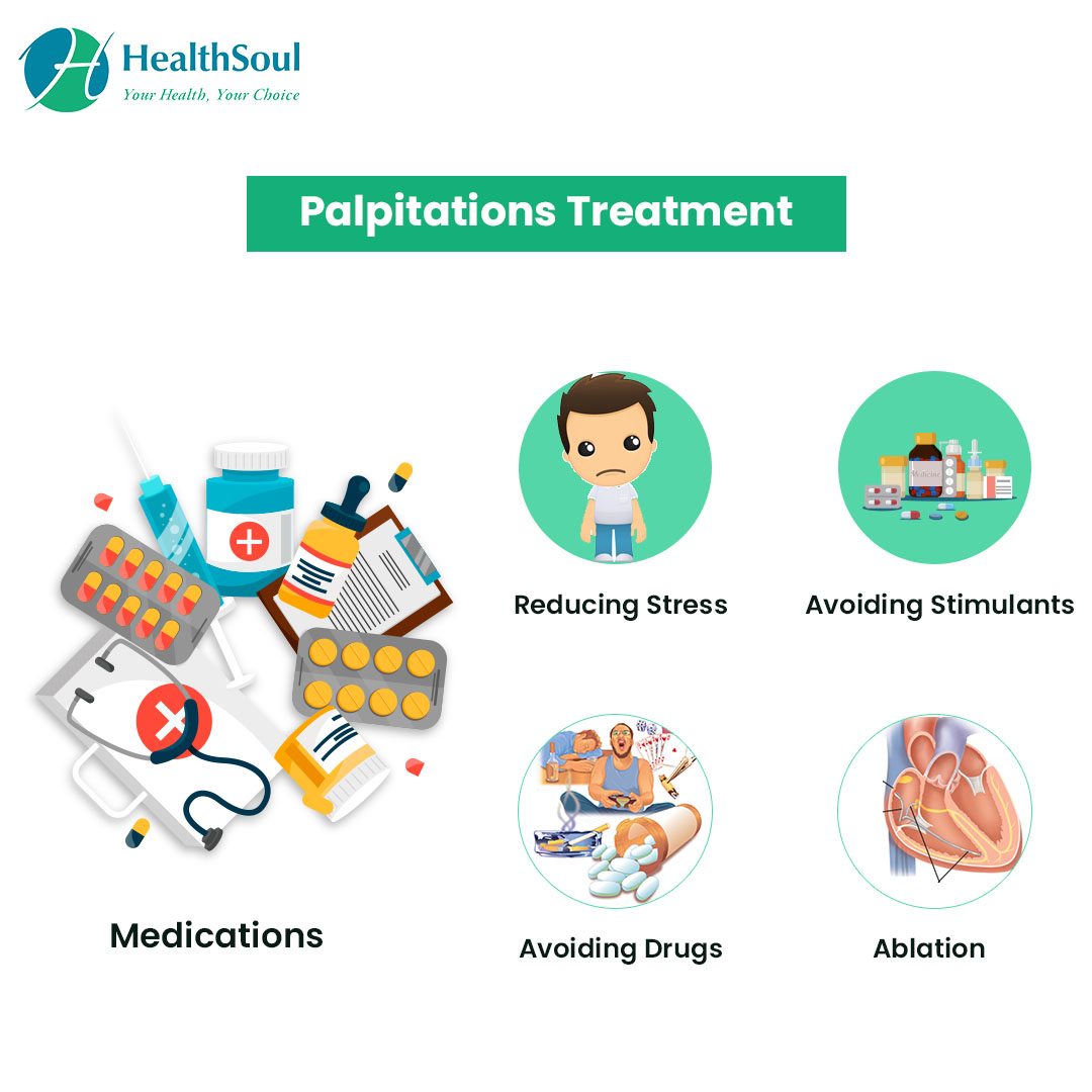 Palpitations Treatment