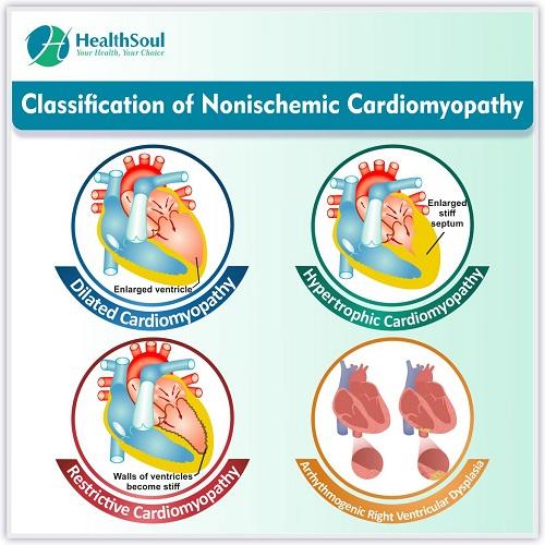 Classification of Nonischemic Cardiomyopathy | HealthSoul