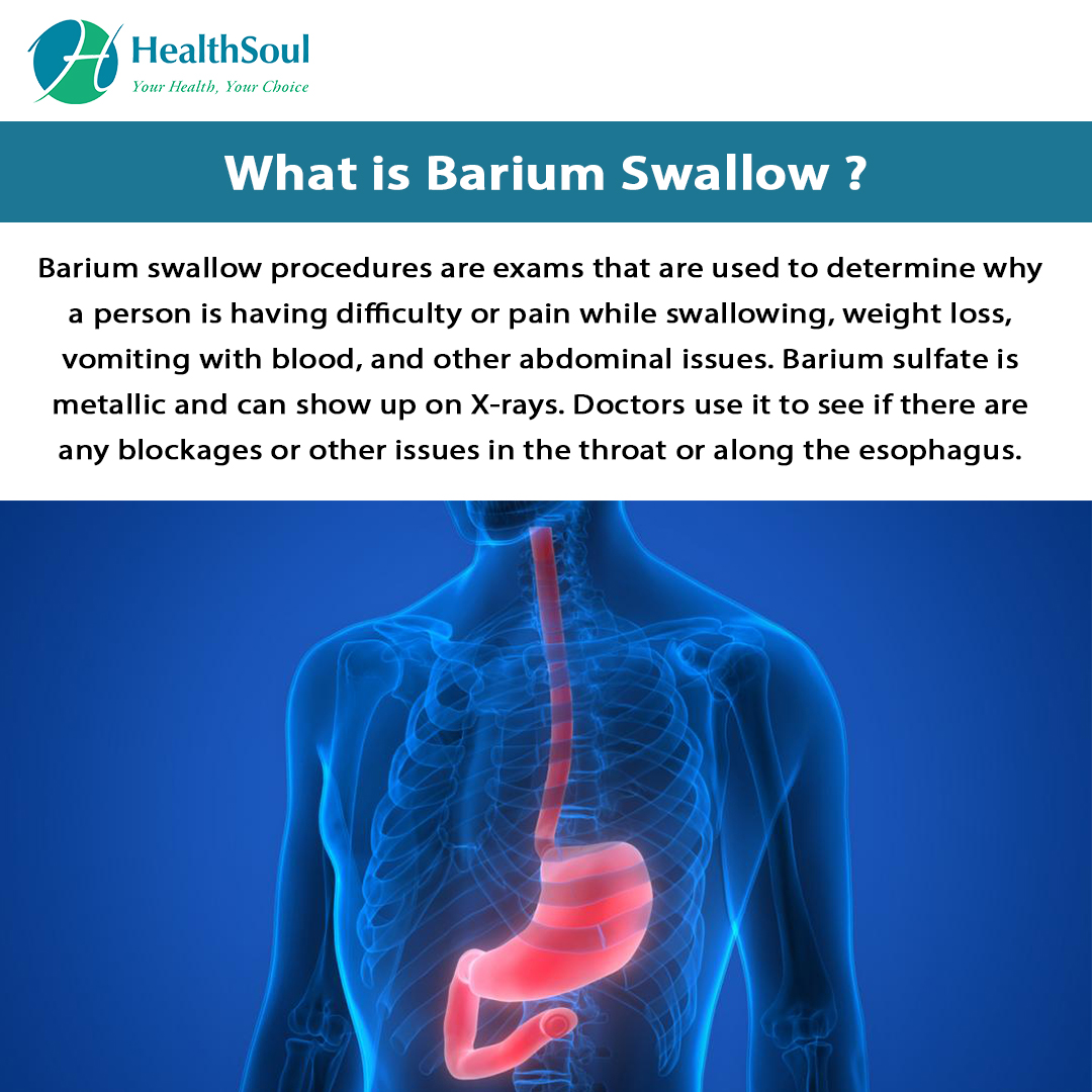 What is Barium Swallow?