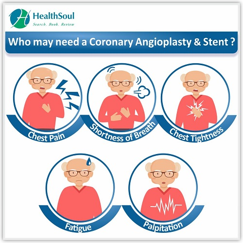 Who May Need a Coronary Angioplasty & Stent ! | HealthSoul