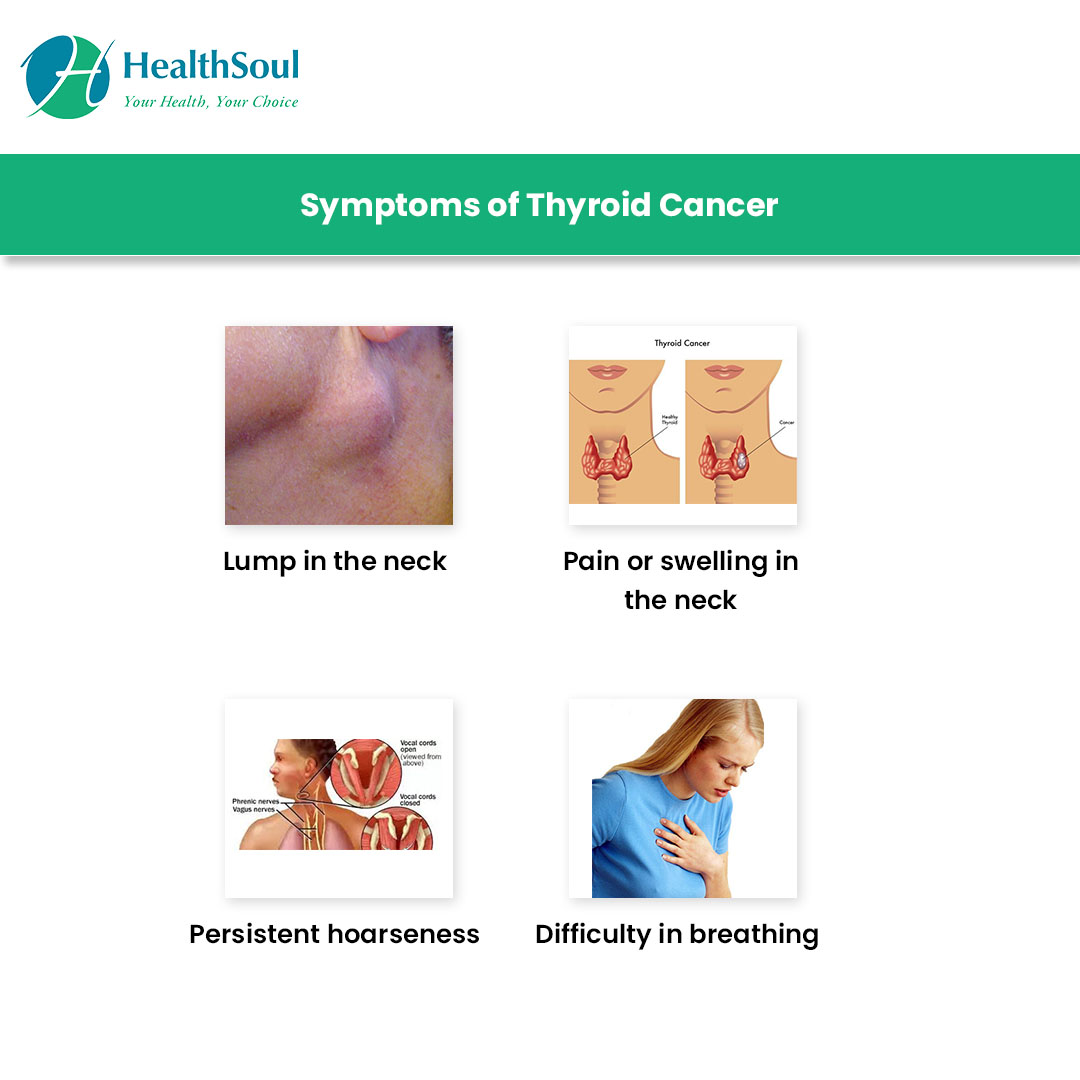 Symptoms of Thyroid Cancer
