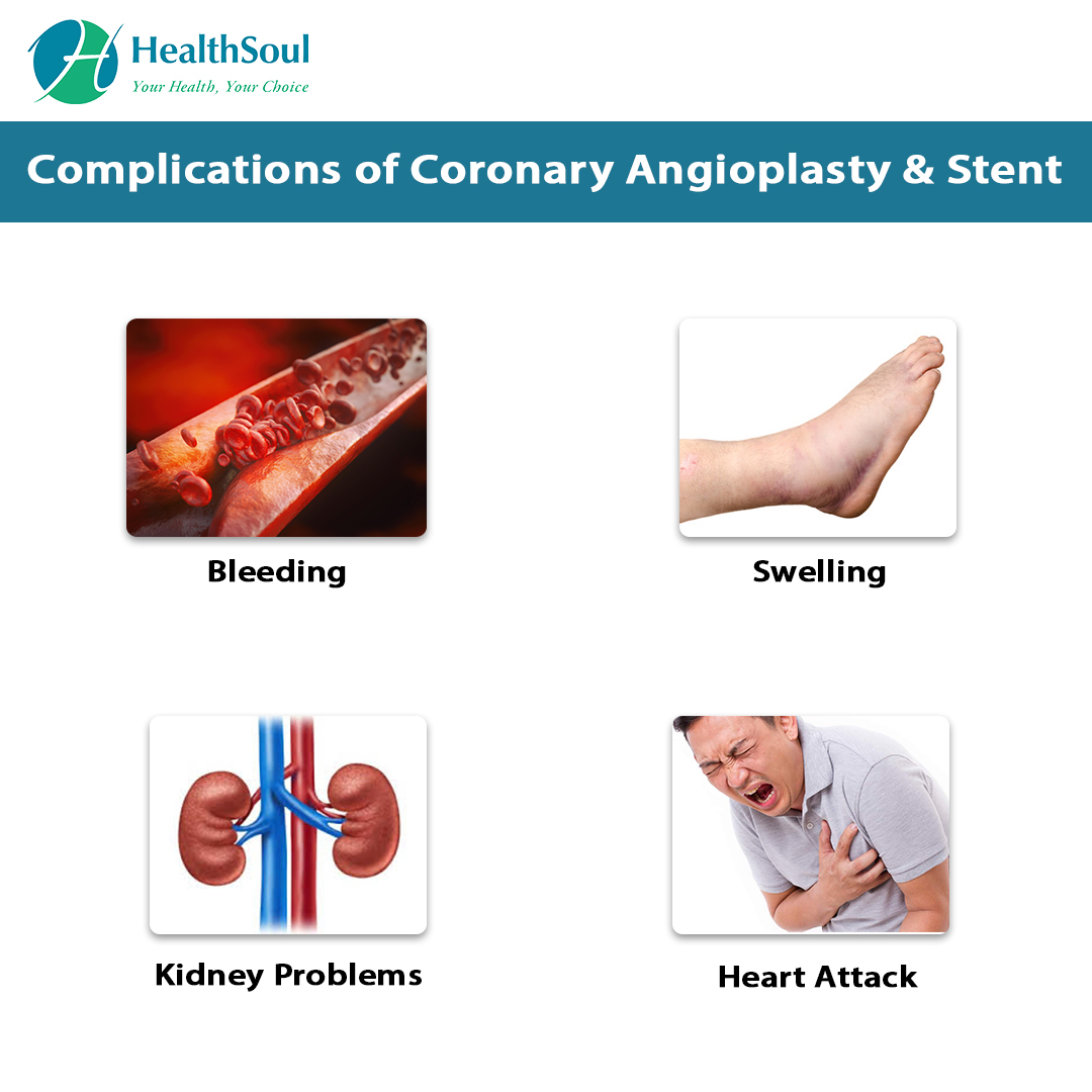 Complications of Coronary Angioplasty & Stent