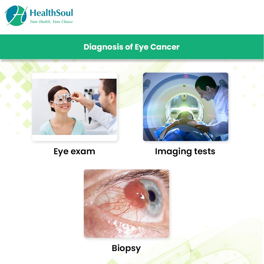 Diagnosis of Eye Cancer