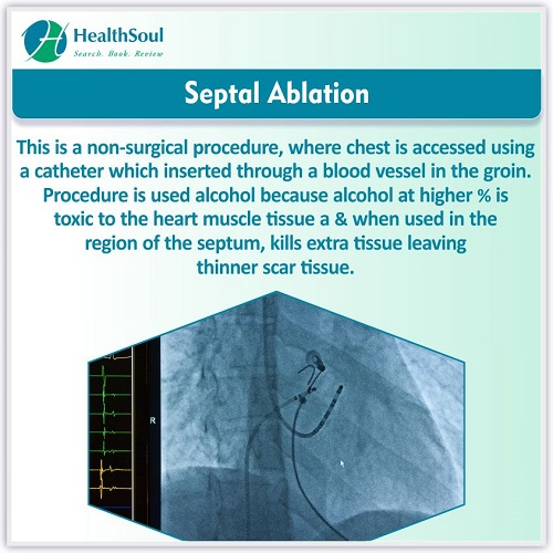 Septal Abiation | HealthSoul