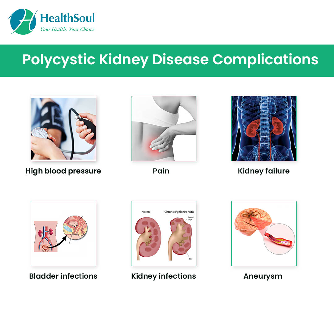 Polycystic Kidney Disease Complications