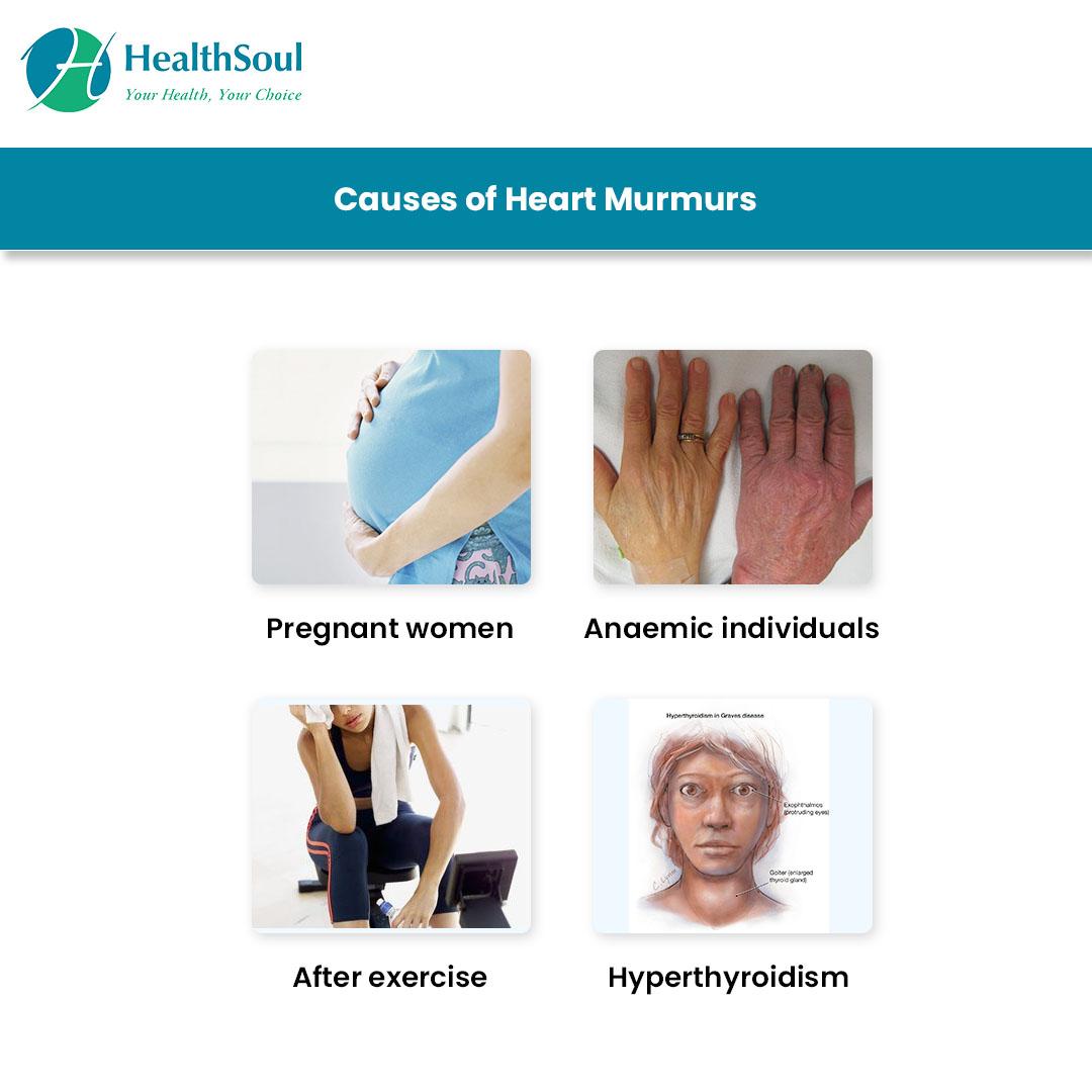 Heart Murmur Causes
