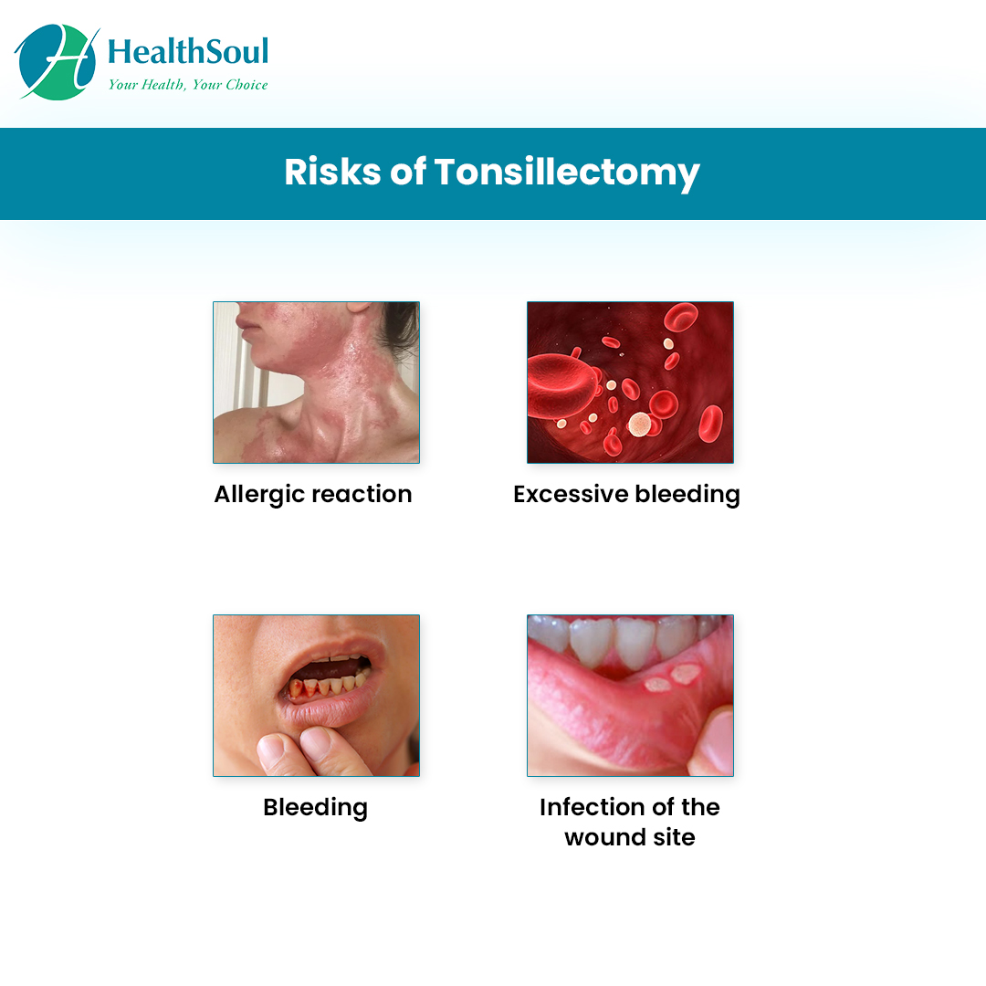 Risks of Tonsillectomy