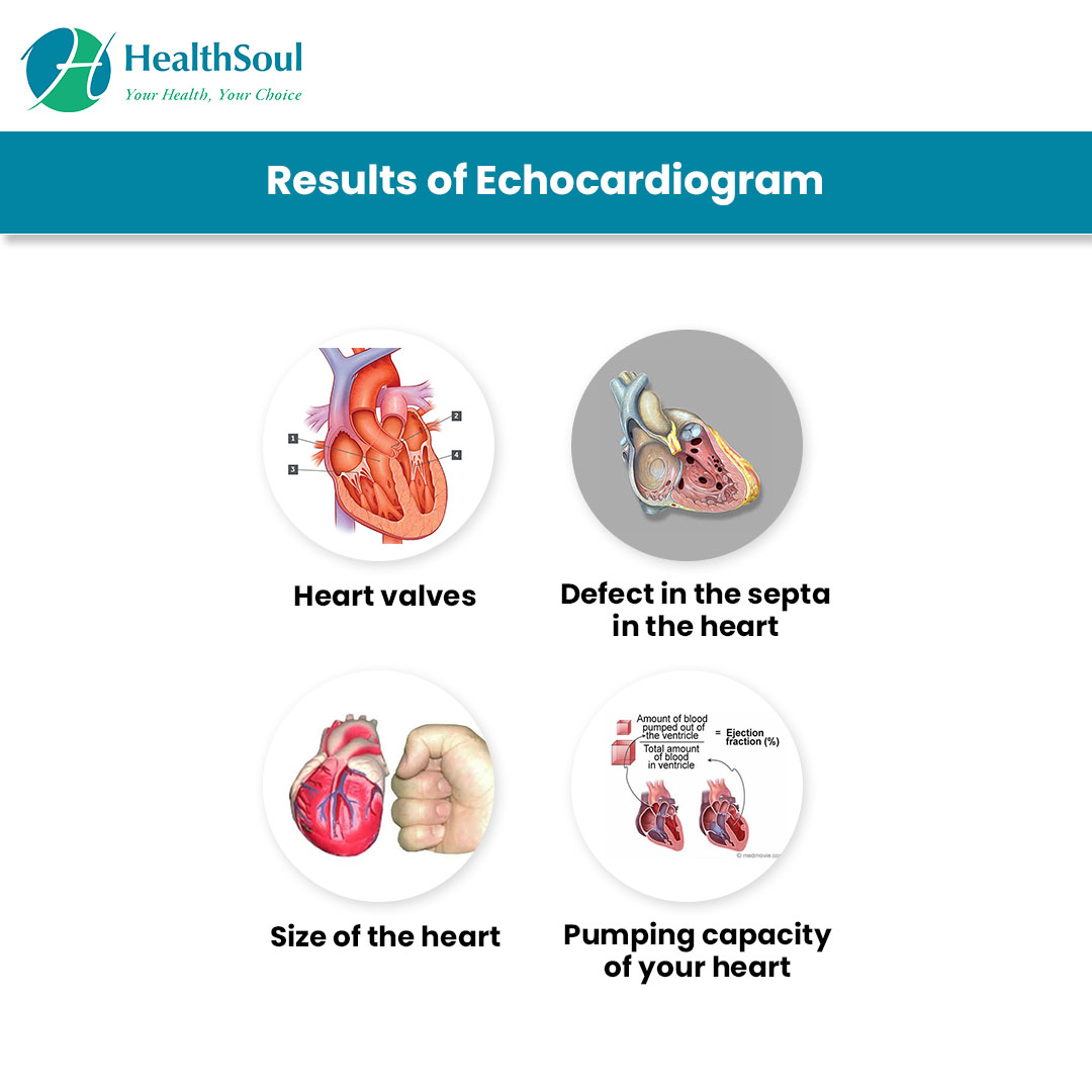 Results of Echocardiogram