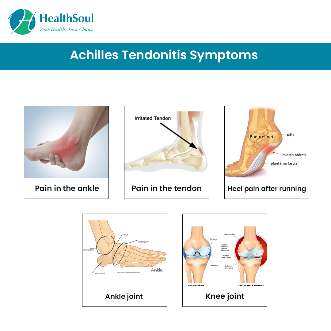 Achiles Tendonitis Symptoms