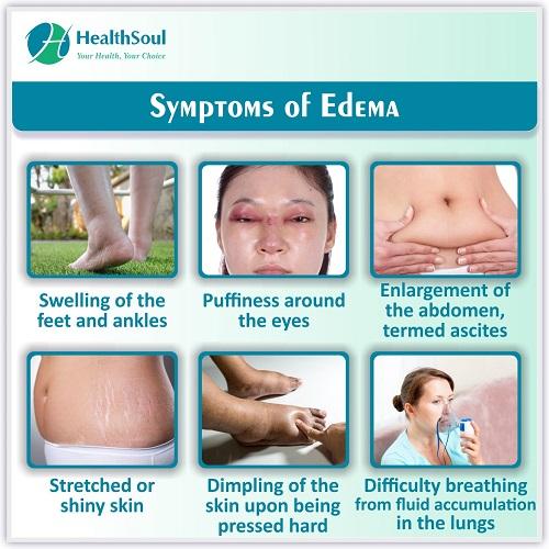 Symptoms of Edema   HealthSoul