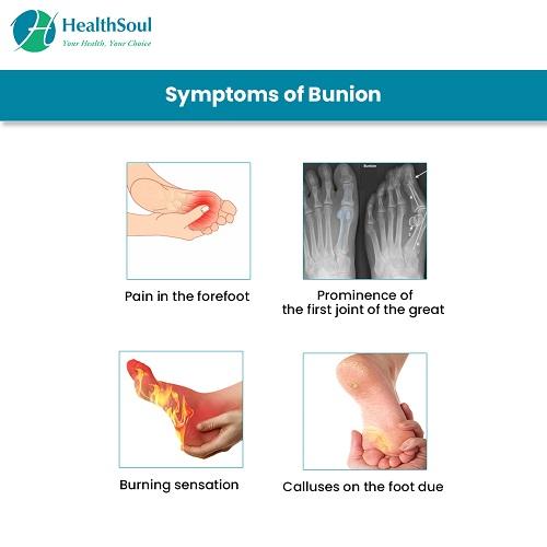 Symptoms of Bunion | HealthSoul