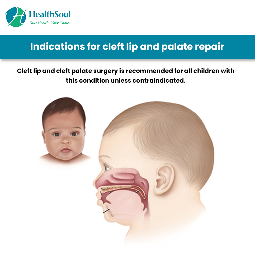 Indications for Cleft lip and Palete Repair