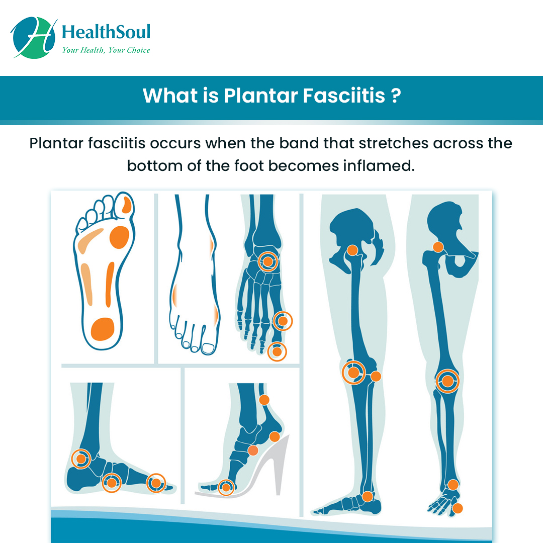 What is Planter fasciitis?