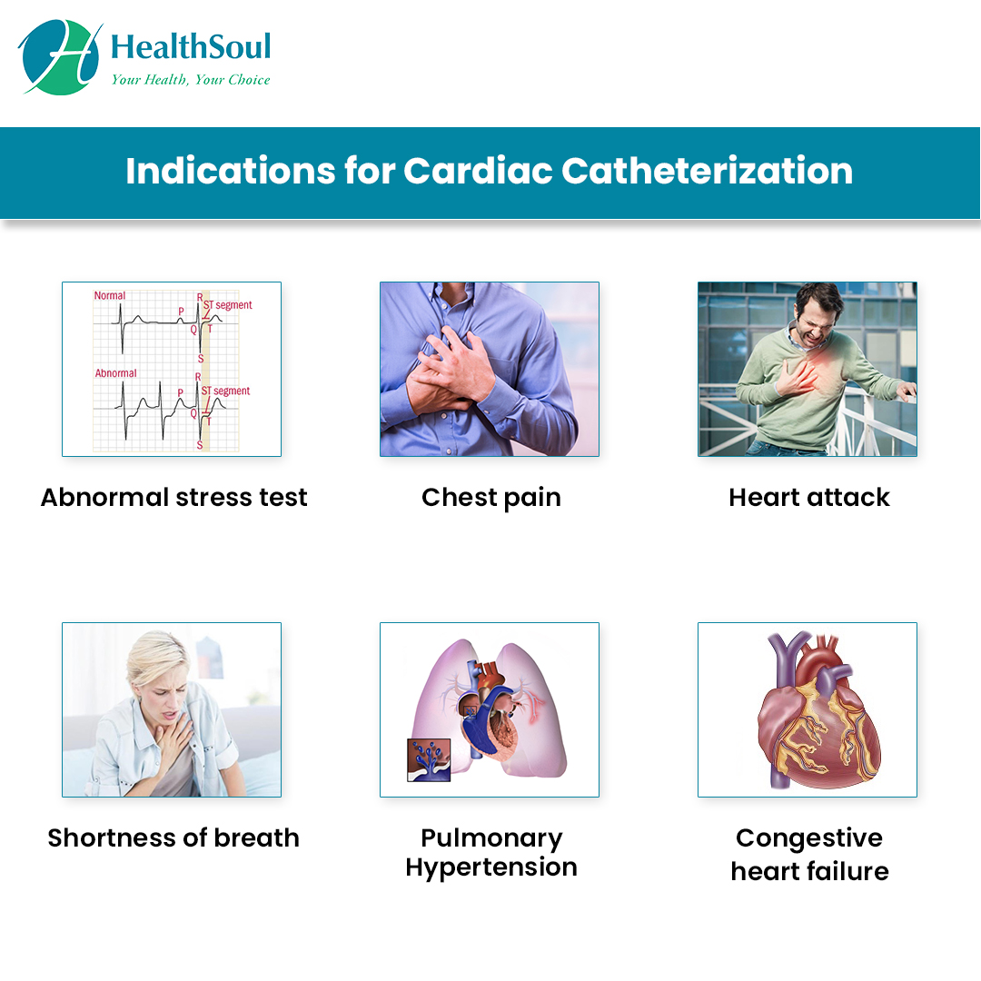 Indications for Cardiac Catheterization